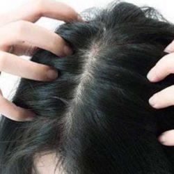 #HAIR को झड़ने से रोकेगा नारियल-शहद का पेस्ट